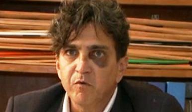 Promotor Carlos Serra Martins será afastado por decisão do CNMP