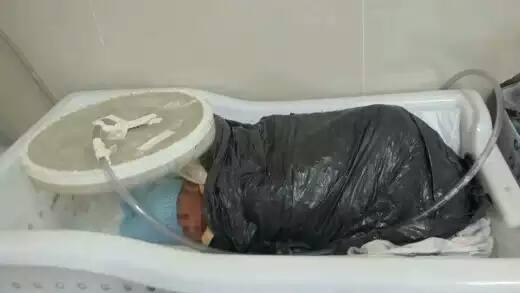 Por falta de manta térmica, equipe médica enrolou bebê em saco de lixo